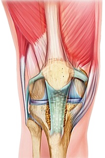 Mida tahendab aheste liigeste artroos