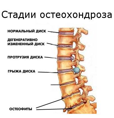 Mis ei saa olla liigeste artriidi ja artriidi juures