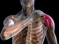 Elbow liigese esmane artroos