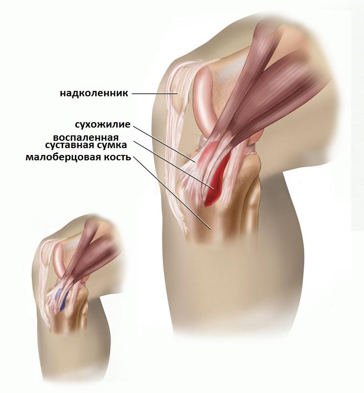 Liigeste ravimeetodite ravi Arthite arthroosi osokeriidi ravi