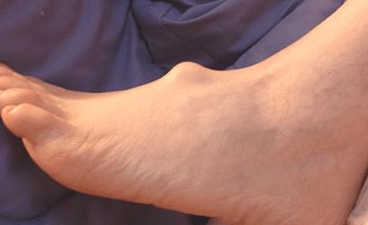 Autoplasma liigeste ravi