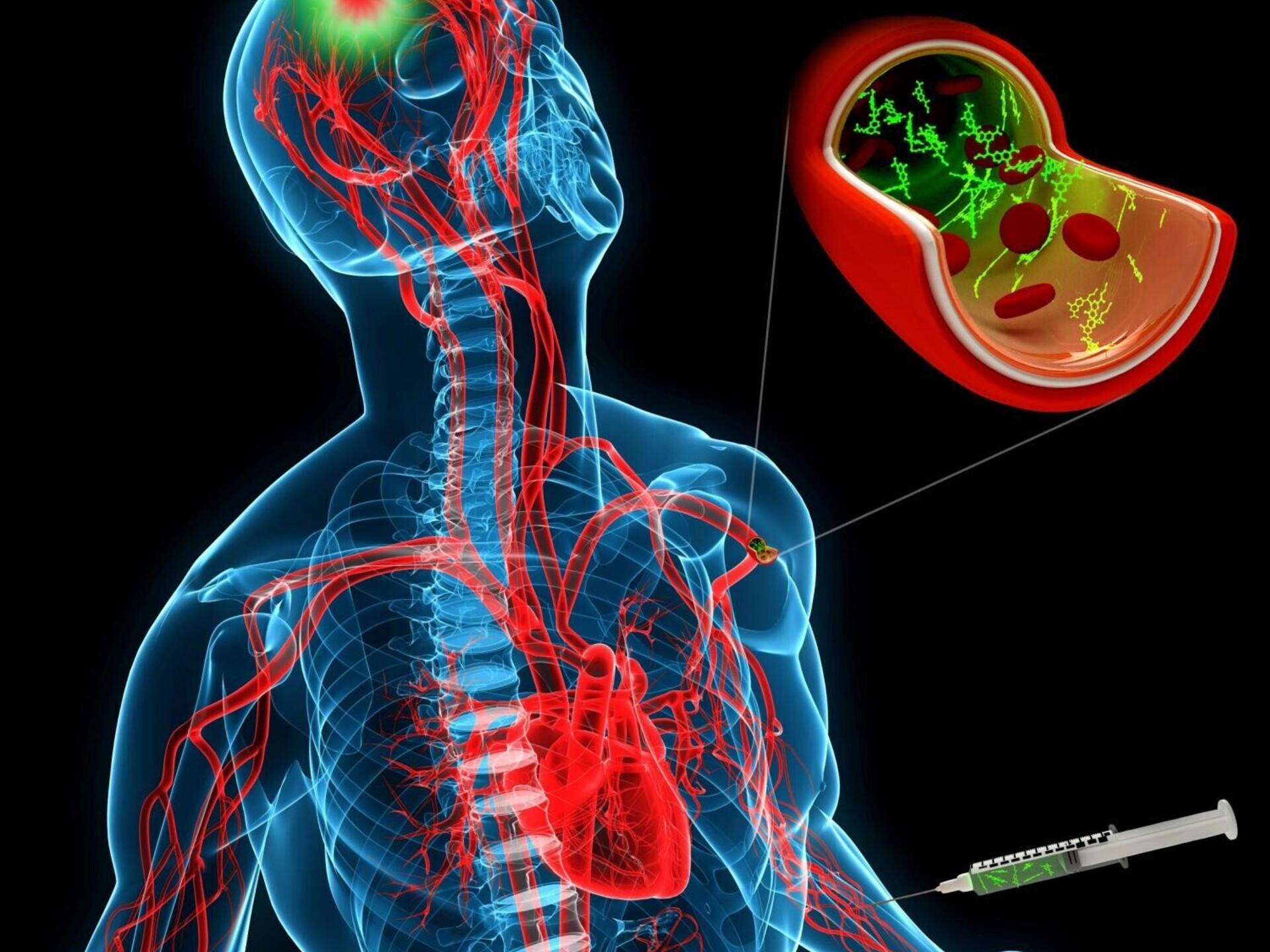 Sormeotste liigeste osteoartroosi ravi Chondroitiin Glukosamiini kompleksi analoogid