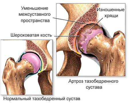 Luude ja liigeste haiguste klassifikatsioon Sellest, mis juhtub liigeste artroos