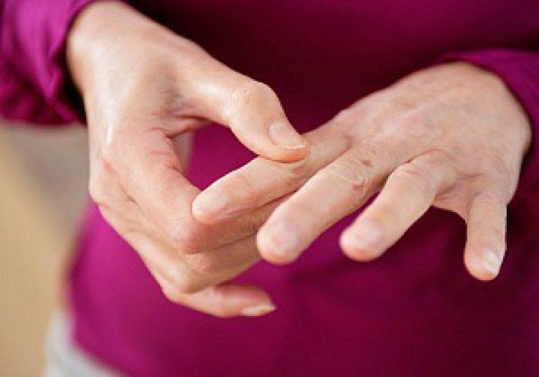 Mida teha artriidi sormedes