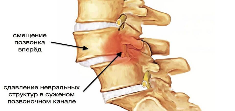 Artrosi loualuu ravi