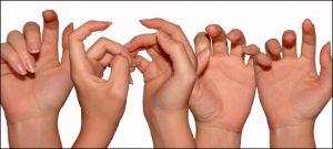 Haigus liigeste sormede kate parast vigastusi ammoniaagi liigeste raviks