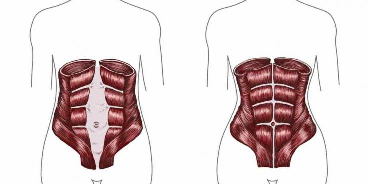 Kiirusta valud ja lihased Mis aitab liigeste poletikku
