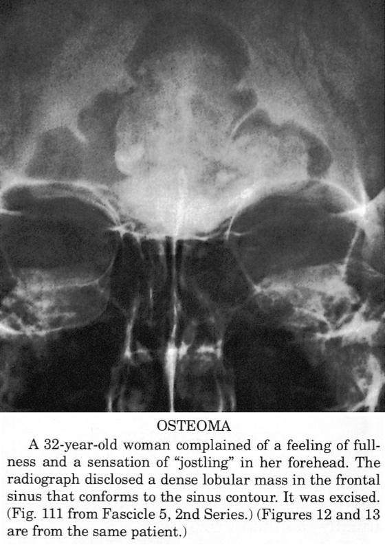Osteoma ola ravi ravi