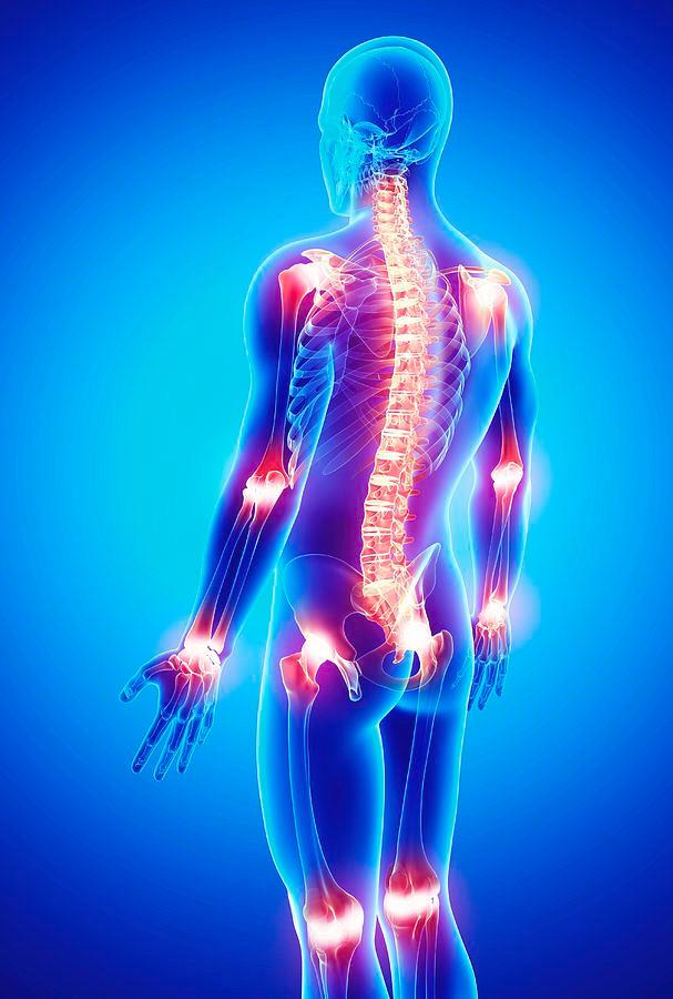 Inimese liigesehaigus inimestel Kuidas ravida valu puusaliigese ja alaselja poole