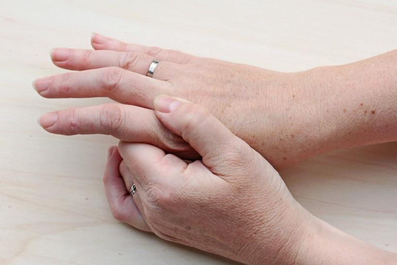 Valu kate sormede liigestes. Artroosi ravi alus