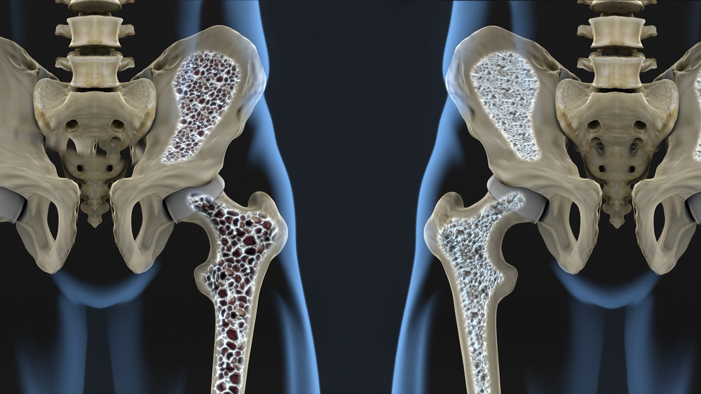 Artroosi on esindatud rippuvate liigestega