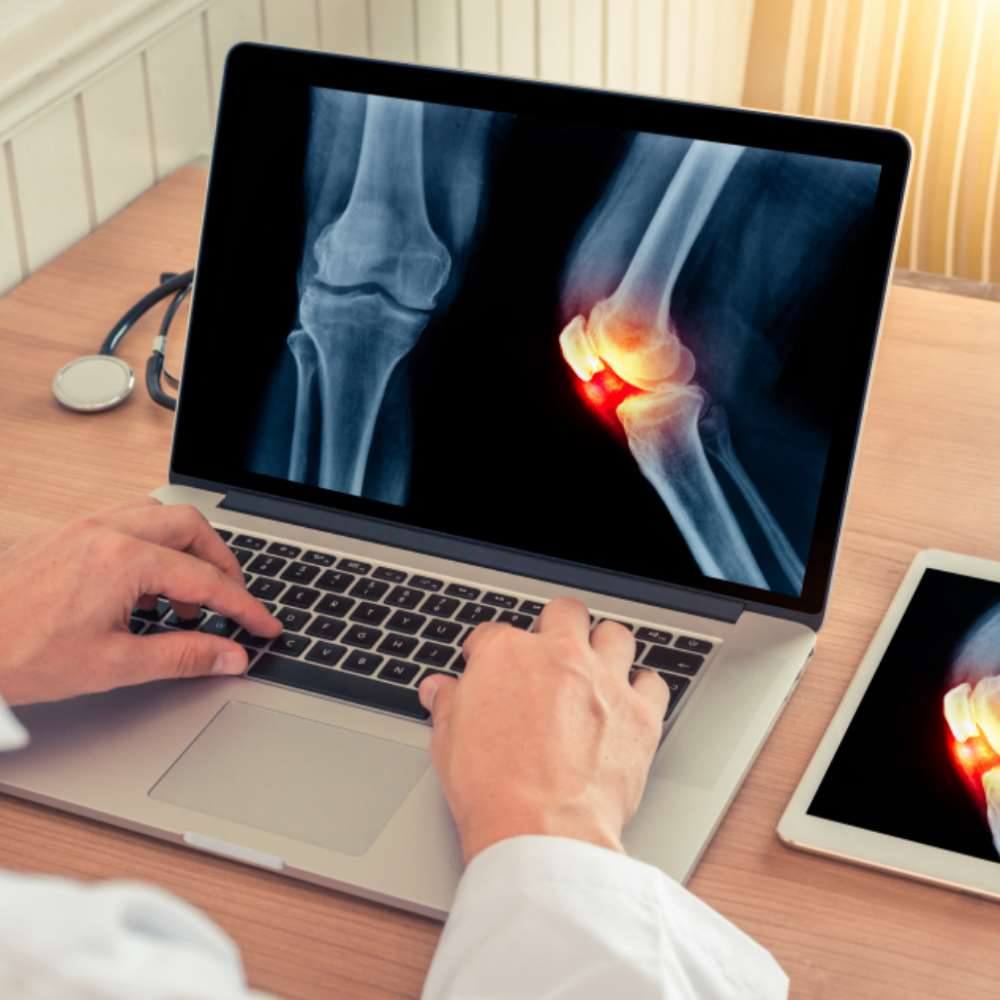Mida tahendab liigeste artroos