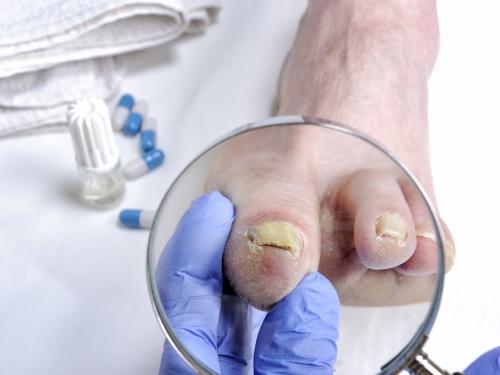 Jalgade haiguste toetab Kuidas eemaldada poletiku poletiku liigestest