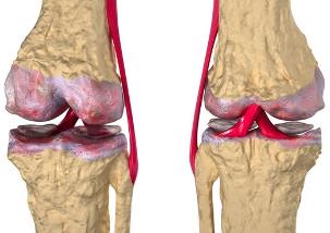 Artriidi artroosi ravi inimeste meetod