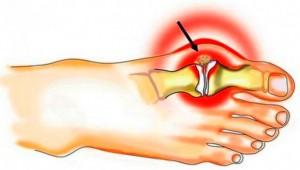 Kuidas eemaldada sormede liigeste poletik kodus Valu liigeste ennetamisel