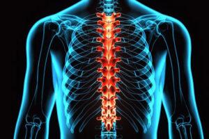 Sormeotste liigeste poletik Artriidi tuimus sormed