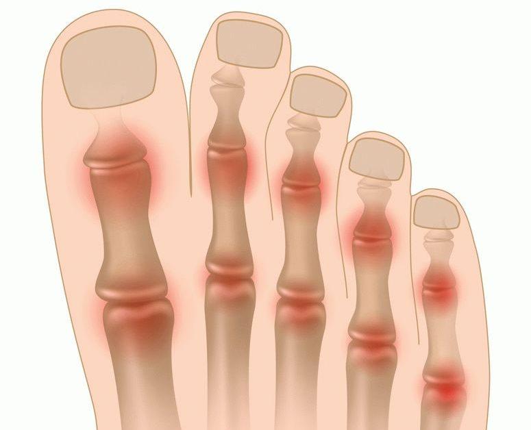 Liigeste ja sidemete vigastuste ravi