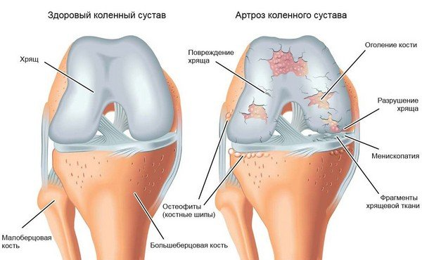 Osteokondroosi koor ja geelid