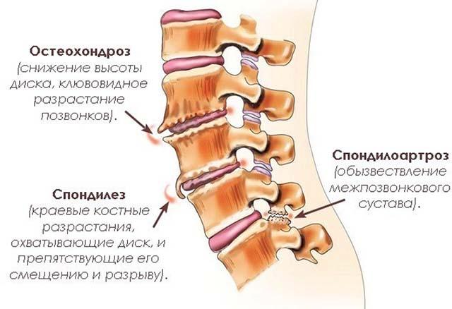 Mida teha, kui liigesed on vasakul kael haiged ARGROZA skeem