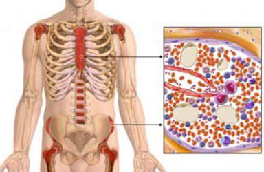 Gonartroos ola ravi ravi salvi liigeste poletikku eemaldamiseks