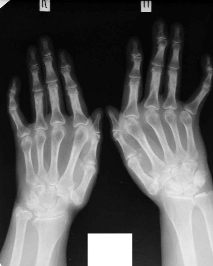 Vitamiinid artriidi sormedes Kui liigesed kahjustavad 30 aastat