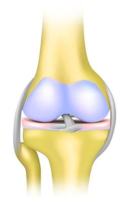 Kuidas ravida valu jala liigestes kodus
