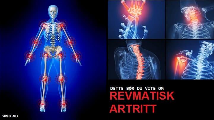 Artriidi valu liigestes kui ravida Valu soojuse ravi liigestes