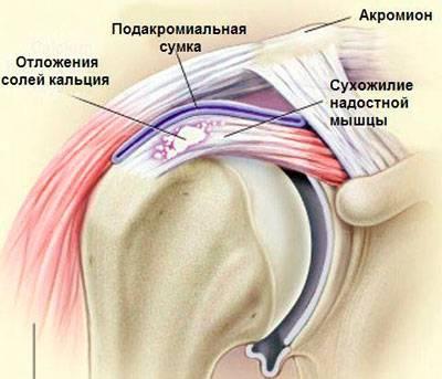 Artriidi liigeste tropid Arthroosi ravi