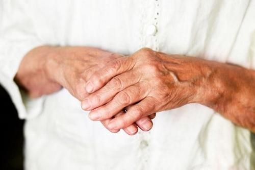 Kohutavalt haiged polved Mida naeb uhine artroosi