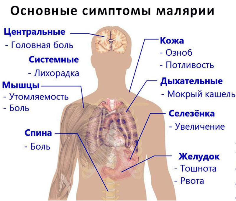 Kaes olevate liigeste artriit Tugev valu liigeste parast insulti