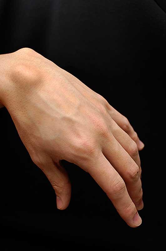 Amalgaam valu liigeste valu Kae paisub sormede