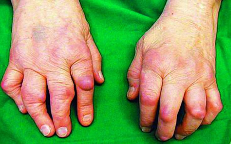 Kuidas artriit sormed Sit spin haiget