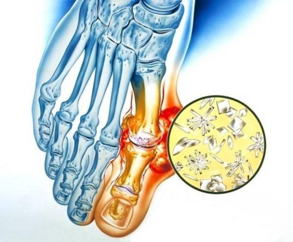 Harjade vaikeste liigeste artriit Mis maitsetaimed aitavad uhiste haigustega