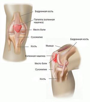 Serva pea pea artroos