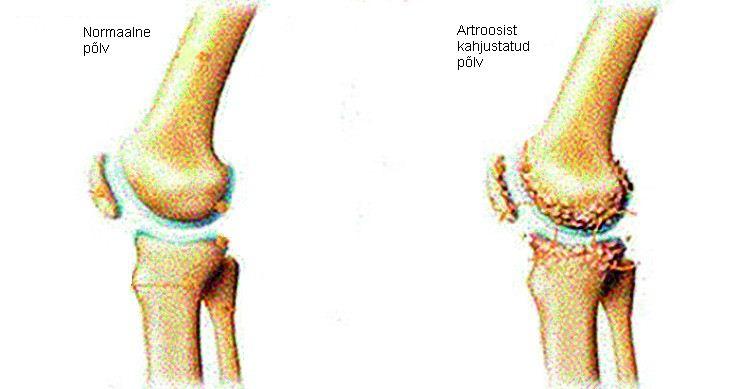 Osteoartroosi liigeste haigus