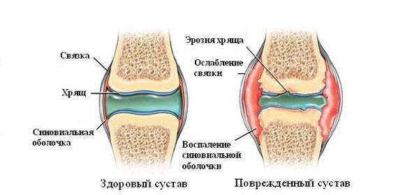 Folk viisil artriidi liigeste raviks Kuidas ravida valu liigestes ja kriisil