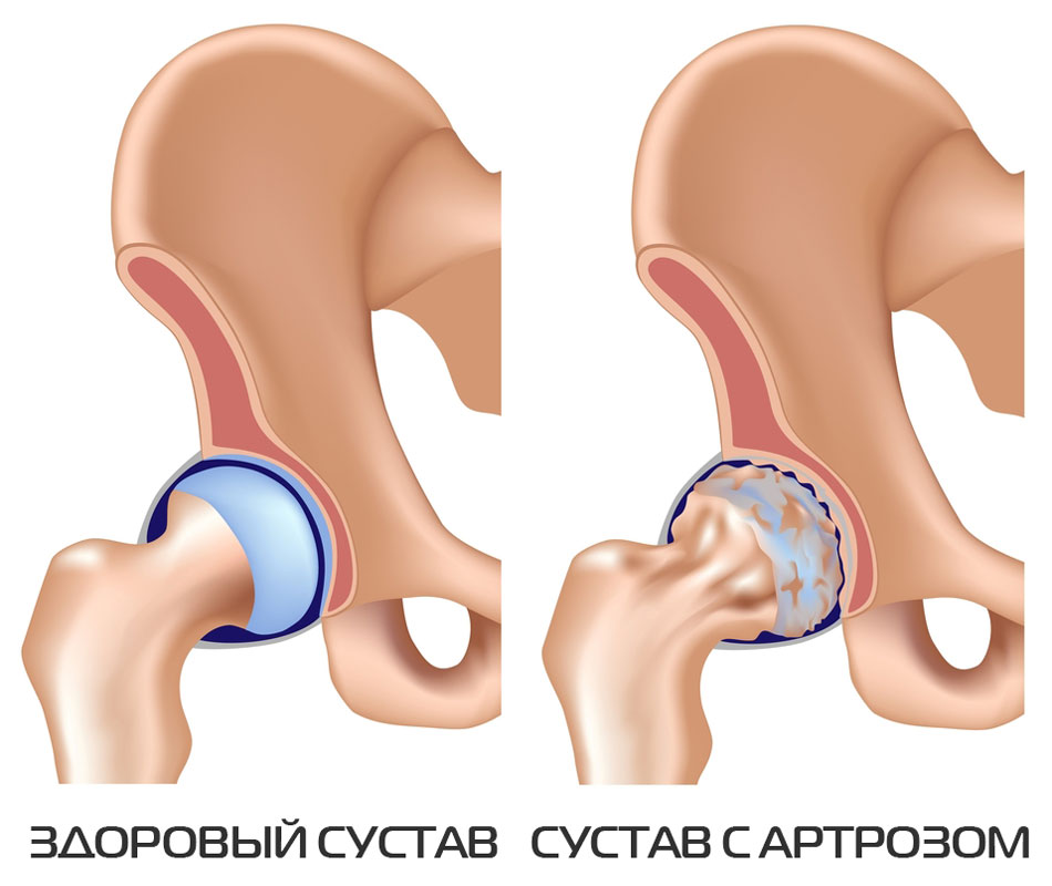 Artroosi ravi 1 kraadi