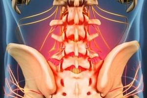Maitsetaimed artriidi liigestest Foot ravi lipsliidete poletik