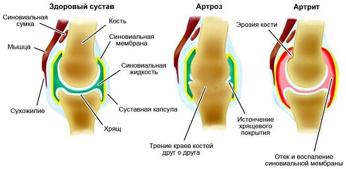 Kuidas ravida jalgade liigeste valu Magusa liige