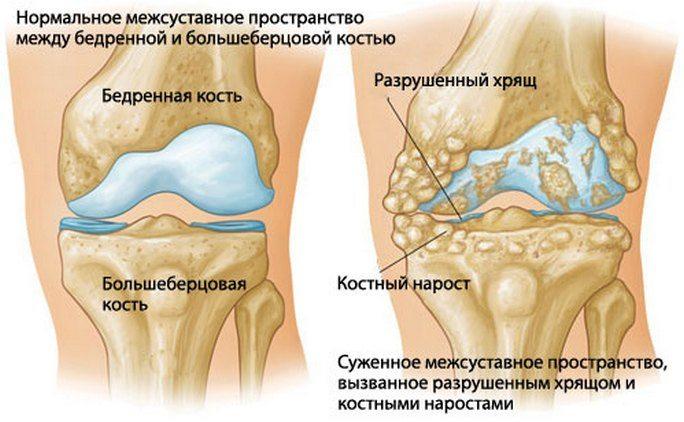 Elektroodid artroosi ravis