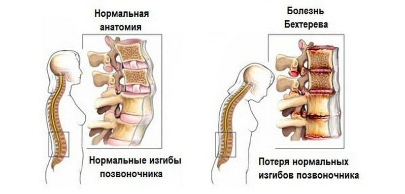Kuidas eemaldada valu ja liigestest Liigeste paindlikkus