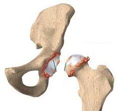 Psuhhosomatics valu tagasi reumatoidartriidi harja kasitsi ravi