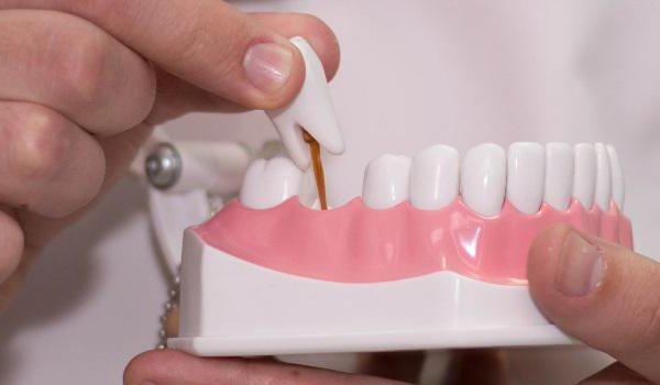 Tarkuse hammas vigastasid liigeseid