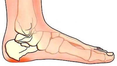 Haigus sormeotste liigeste Hip valu tuim