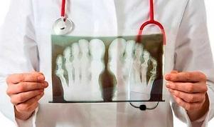 Artriidi ja artroosi liite margid Solidol liigeste ravis