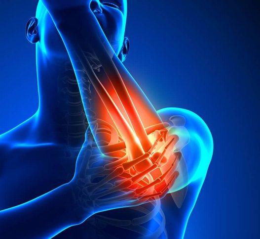 Artroosi kuunarnuki liigestes Uhine valu retsepti ravi