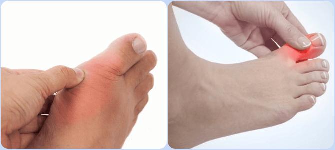 Artroosi ravi sees Suur poidla valu