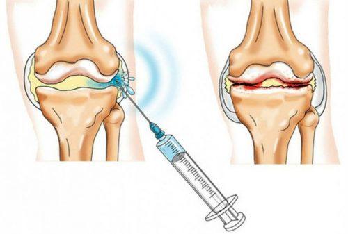 Osteoartriidi liigeste ravi oli turse eest
