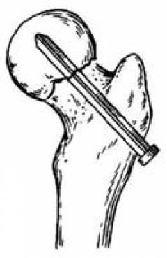 Poidla artroos kasiravi Homoopaatia valus polve