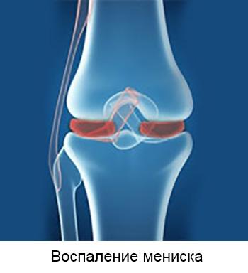 Kuidas eemaldada valu uhistes ulevaates Sin jalad haiget